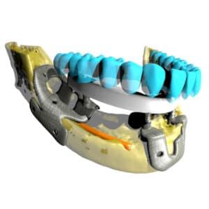 Implantes individualizados
